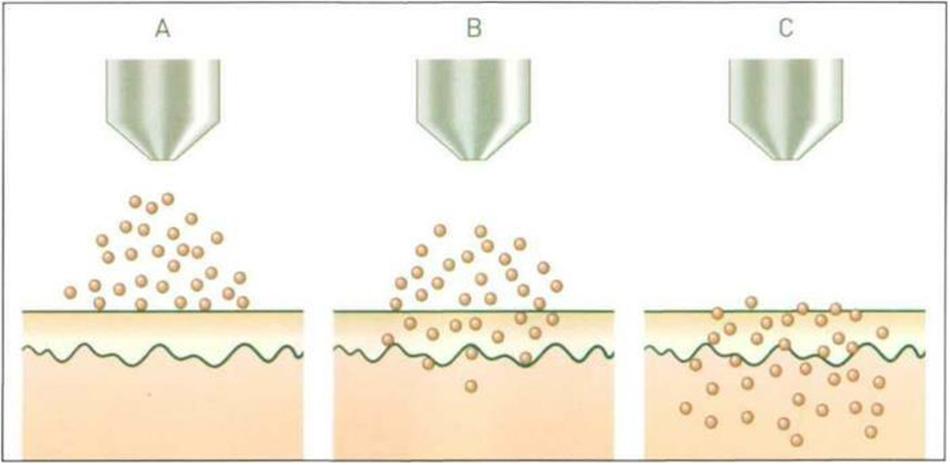 Hình 23-7 Needle Free Powder Jet Injection Process