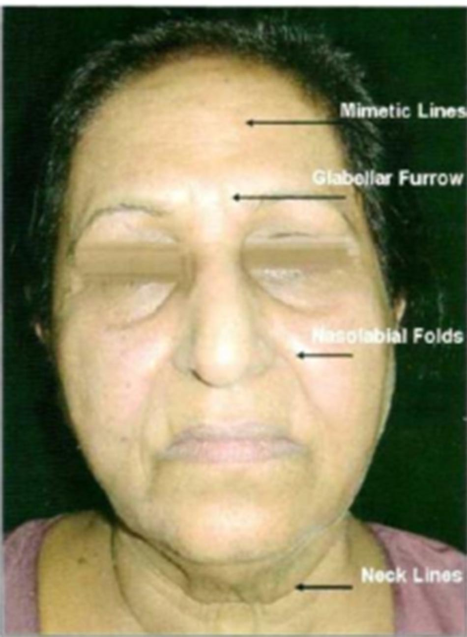 Hình 5-8 Mimetic Lines, Wrinkles, Furows and Folds