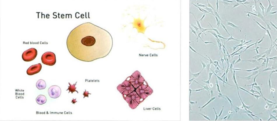 Hình 3-3: The Stem Cell và tế bào gốc dưới kính hiển vi
