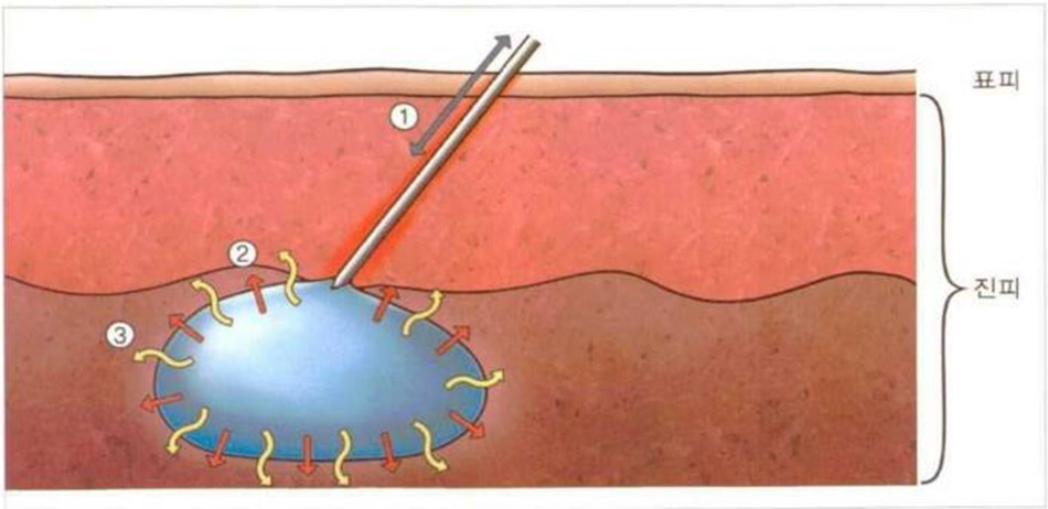 Ảnh hưởng phát sinh trong kết cấu da sau khi tiêm booster skin