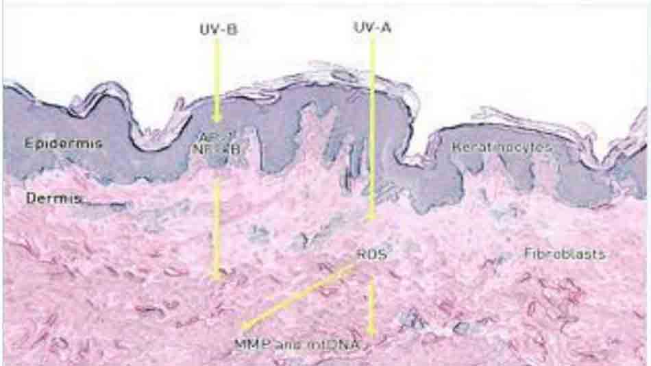 Hình 10-3 Ultraviolet light interacts with different skin cells at different depths Energy from UVB rays is mostly absorbed by the epidermis and affects epidermal cells such as the keratinocytes. Energy from LVA rays affects both epidermal keratinocytes and the deeper dermal fibroblasts, AP-1, activator protein 1; NF-KB, nuclear factor KB, matrix metalloproteinasn mtDNA, mitochơndrial DNA; ROS, reactive oxygen species.