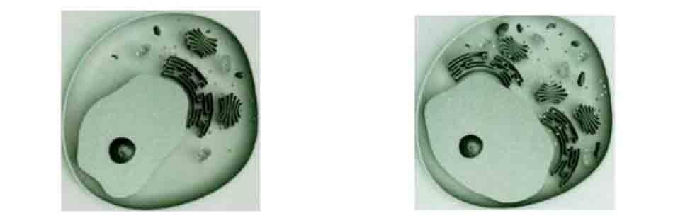 Hình 11-2 Sơ đồ kinh hiển vi điện tử A. Tế bào Melenin của da bình thường, B. Tế bào Melenin của da nám — mitochơndria, Golgi apparatus, rough endoplasmic reticulum, ribosome tất cả đều đang tăng.