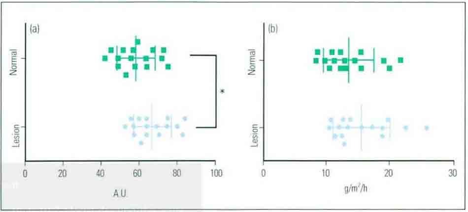 Hình 11-5 Đặc điểm của lớp sừng cơ bản (Basal Stratum Corneum)
