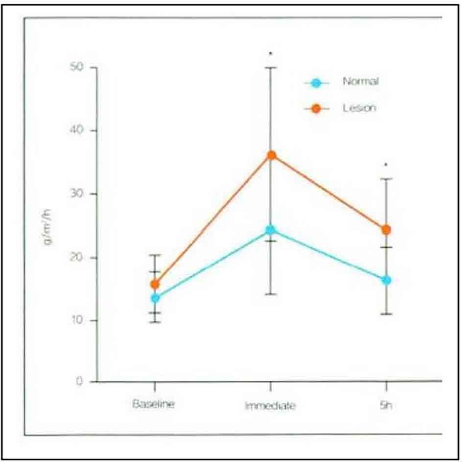 Hình 11-6 Chức năng hàng rào thẩm thấu của thượng bì Sau khi lặp lại 5 lần gắn- tháo băng dính trên da TEWL đã đo. Tại da nám TEWL đã tăng tương đối. Đặc biệt, ở da nám có thể thấy hồi phục trể sau 5 giờ (P
