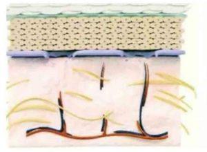 Hình 11-7 Hình ảnh điển hình màng đáy basement membrane bị hư hại.