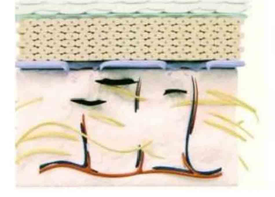 Hình 11-9 Hình minh họa kết quả thực bào (melanophage) melanin nuốt lấy melanosome và tế bào mellarin (melanocyte) trong lớp hạ bì