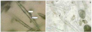 Hình 7-1 Kim mịn (nhỏ) Peeling FCR