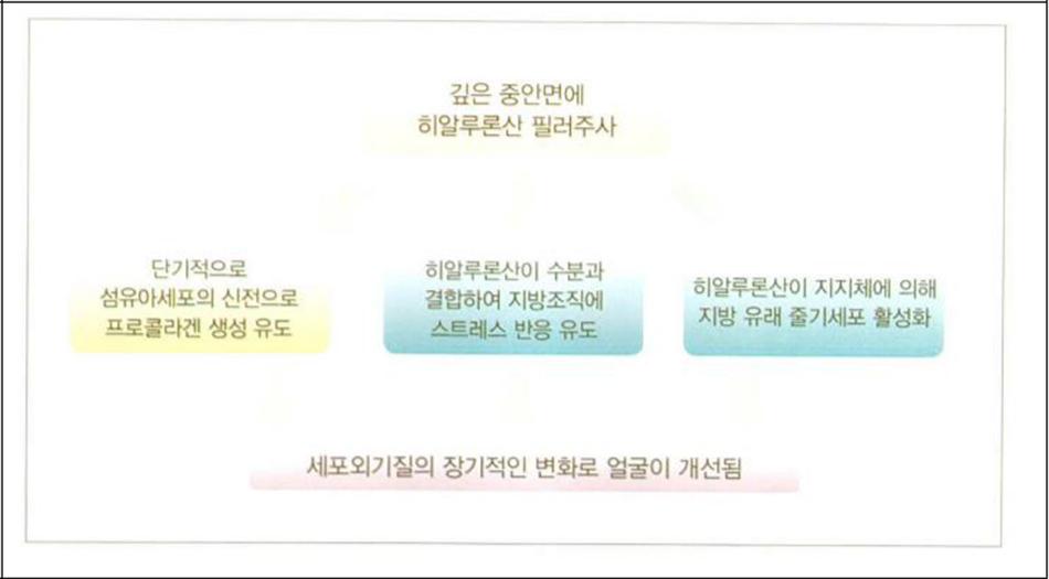 Hình27-4 Khái niệm về tác động của filler mô mềm mới