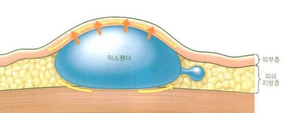 Hình 31-5 Khi thể tích tăng lên thi vùng tiêm cũng giãn theo bản chất dãn ra (expander) của da