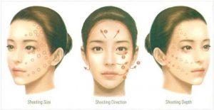 Hình 31-6 Phương pháp tiêm dermotoxin