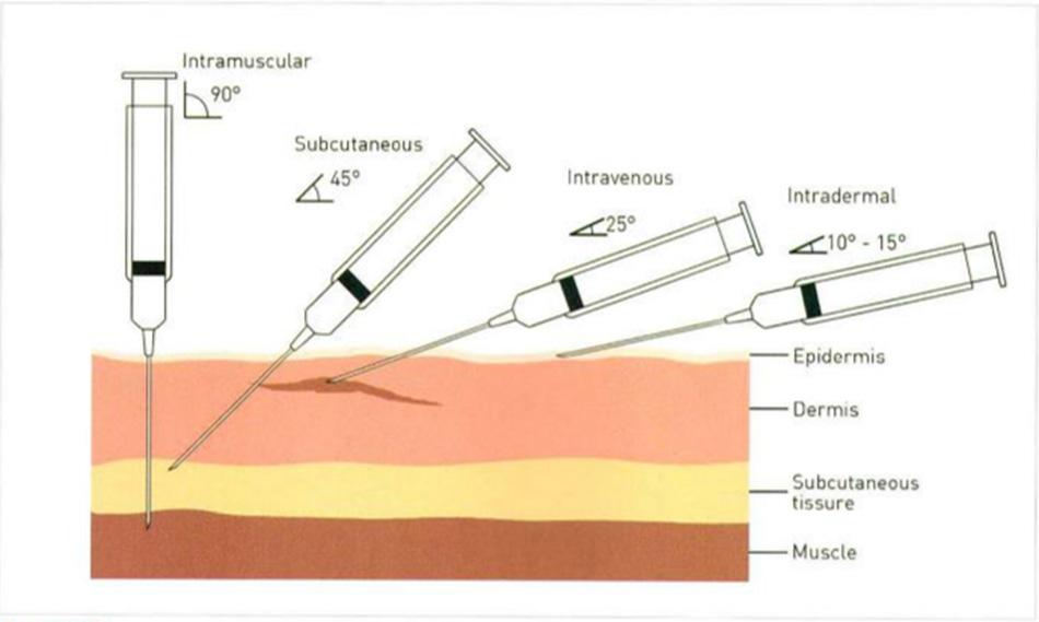 Hình 27-2 Phương pháp tiêm khác nhau ở vị trí thông thường